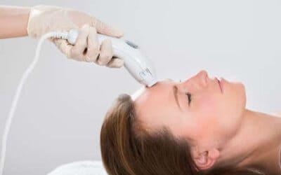 Comment fonctionne le traitement au laser contre les cicatrices d'acnés ?