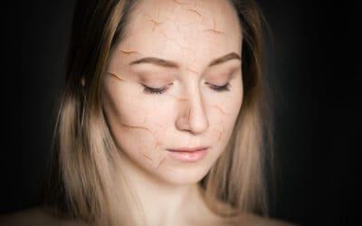 9 moyens de traiter votre peau sèche